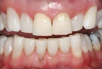 Here is the after picture of the kor whitening system used by Auburn teeth whitening.