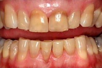 This is a before picture of the kor whitening system used in Auburn teeth whitening.