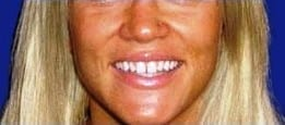 A woman's smile before gettin Auburn Lumineers.