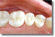 Mercury free composite fillings