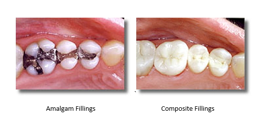 Two side by side pictures. One with mercury filled amalgam fillings and one with mercury free composite fillings