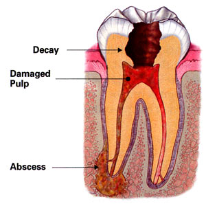 illustration of an infected tooth
