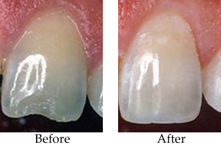 Before-and-after photos of a front incisor chipped tooth that was restored with dental bonding.