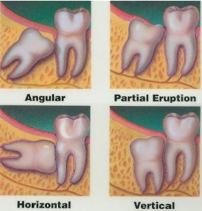 illustration of four impacted wisdom teeth