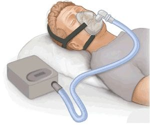 Dummy wearing a CPAP
