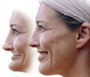 image of a woman before and after facial collapse